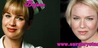 Renne Zellweger Plastic Surgery