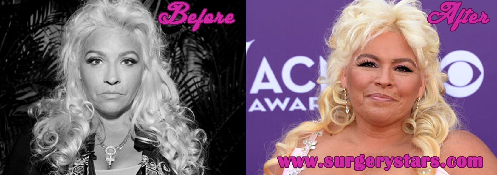 beth chapman plastic surgery before and after pic