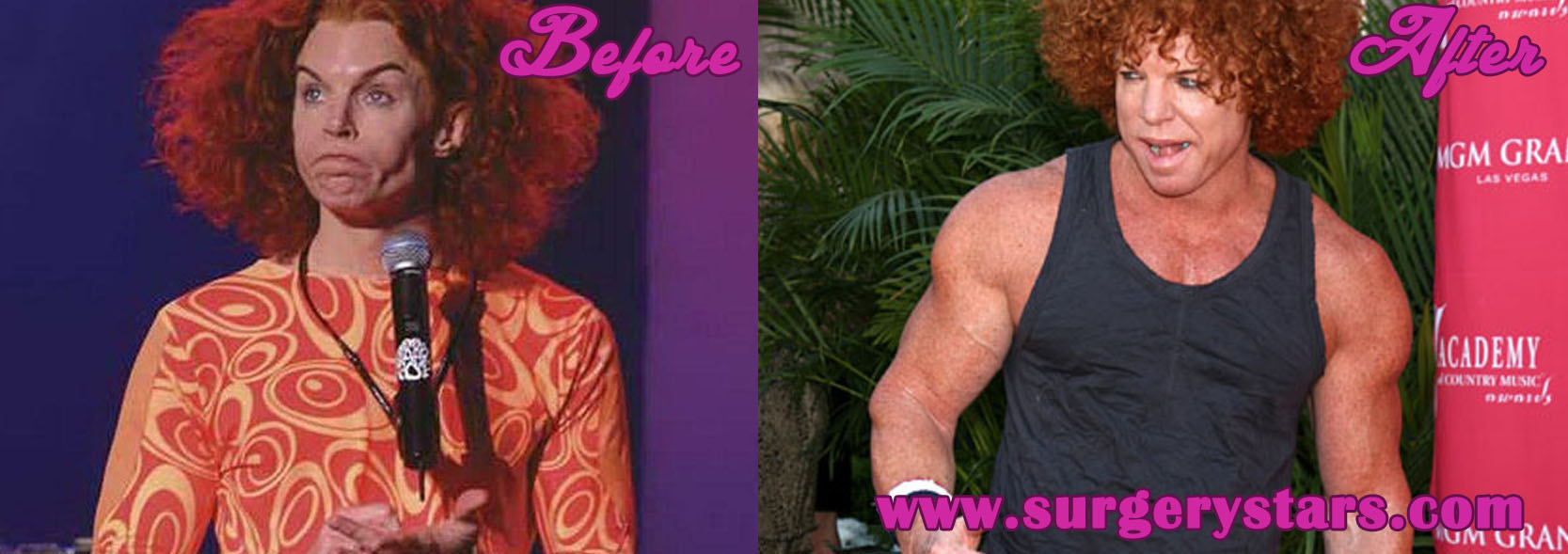 Carrot Top Steriods – Before and After Pictures