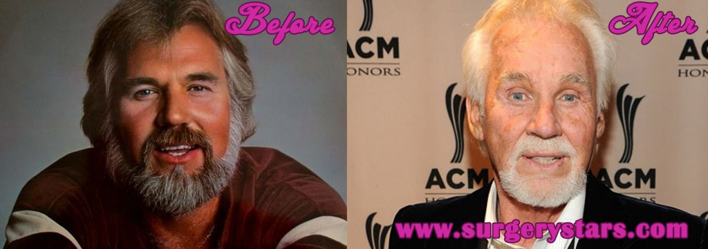Kenny Rogers Facelift
