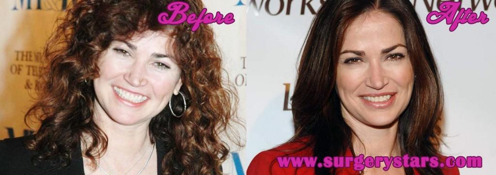 Kim Delany Plastic Surgery