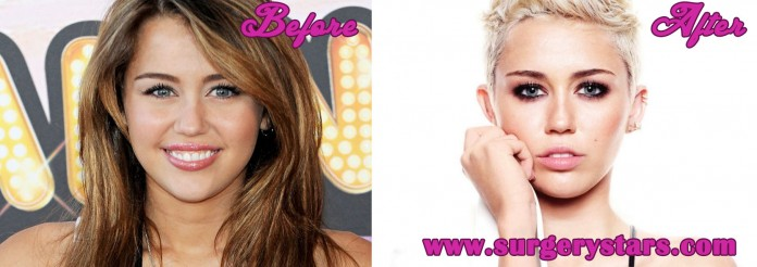 Miley Cyrus Nose Job