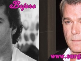 Ray Liotta Plastic Surgery