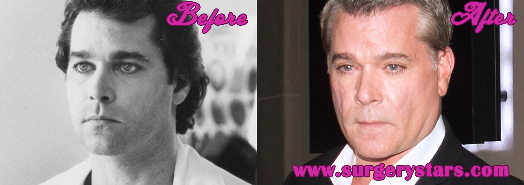 Ray Liotta Plastic Surgery Before & After Pictures