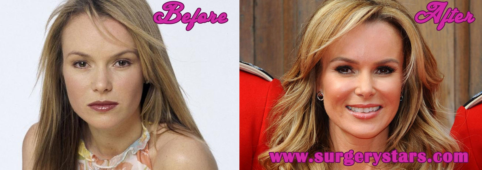 Amanda Bynes Plastic Surgery Before and After