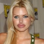 celebrity plastic surgery gonewrong