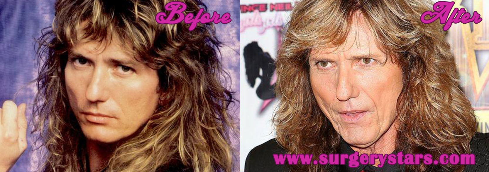 David Coverdale Plastic Surgery – Before and After Pictures