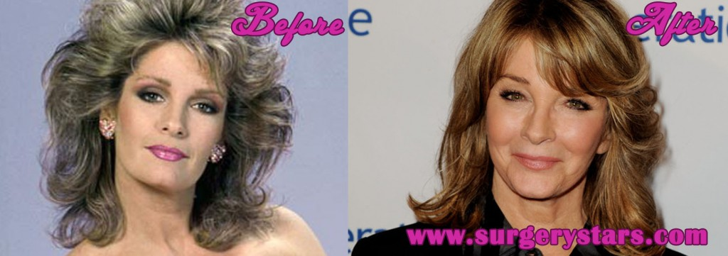 Deidre Hall Plastic Surgery