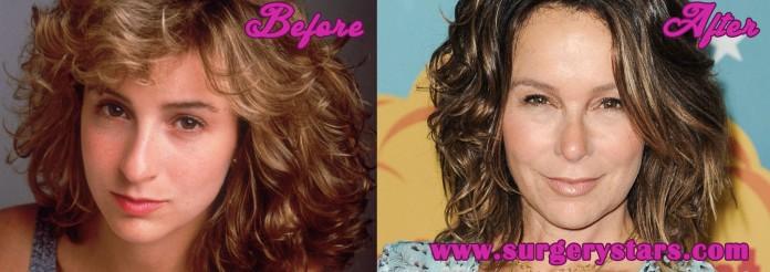 Jennifer Grey Plastic Surgery