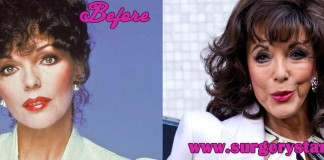 Joan Collins Plastic Surgery