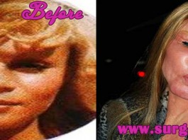 Jocelyn Wildenstein Before and After