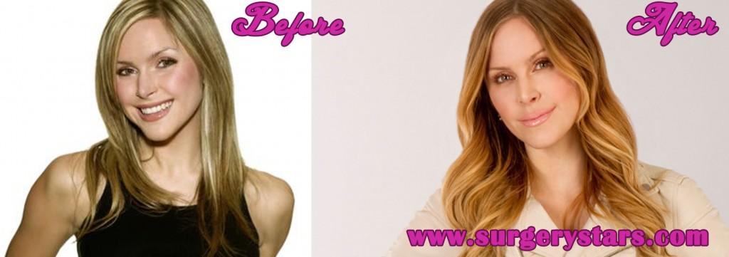 Leah Miller Plastic Surgery