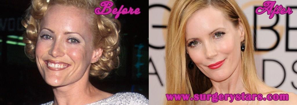 Leslie Mann Plastic Surgery