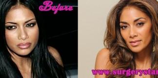Nicole Scherzinger Plastic Surgery