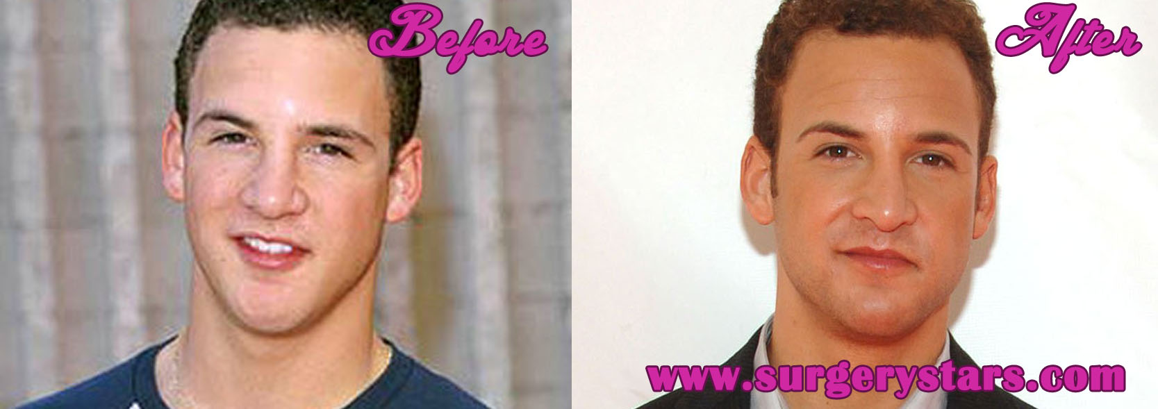 Ben Savage Nose Job – Before and After Pictures