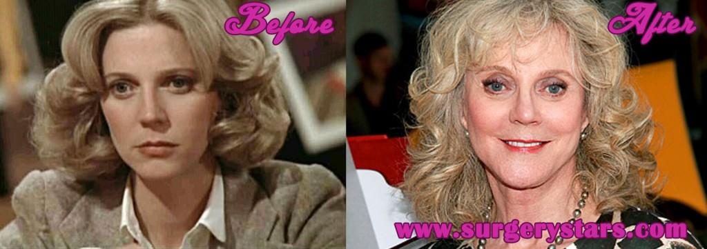 Blythe Danner Plastic Surgery
