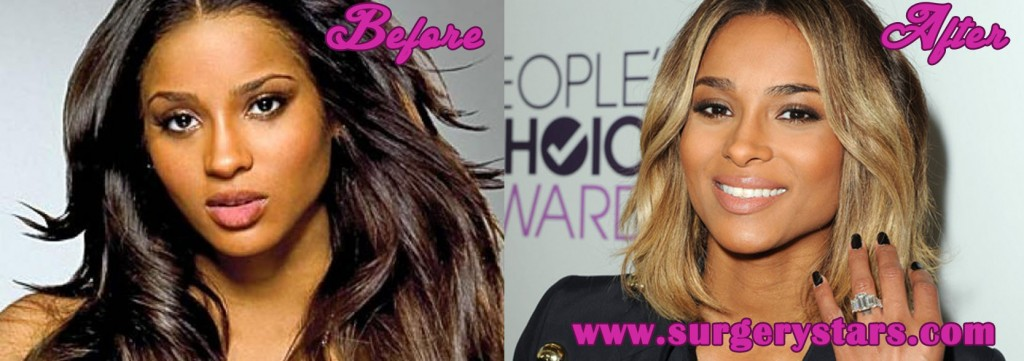 Ciara Nose Job