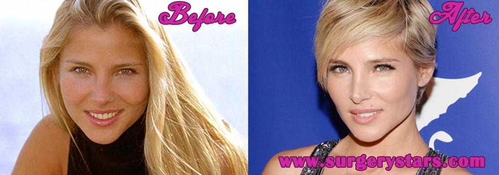 Elsa Pataky Plastic Surgery