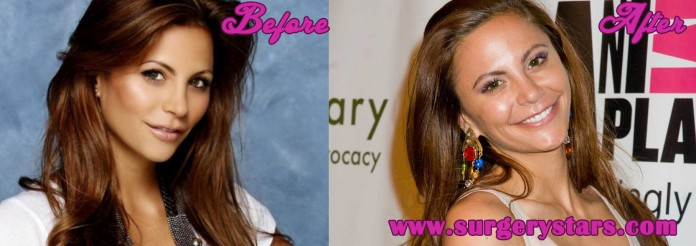 Gia Allemand Plastic Surgery