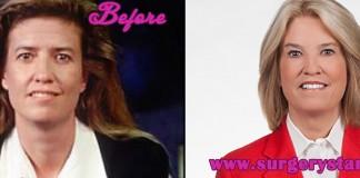 Greta Van Susteren Before and after