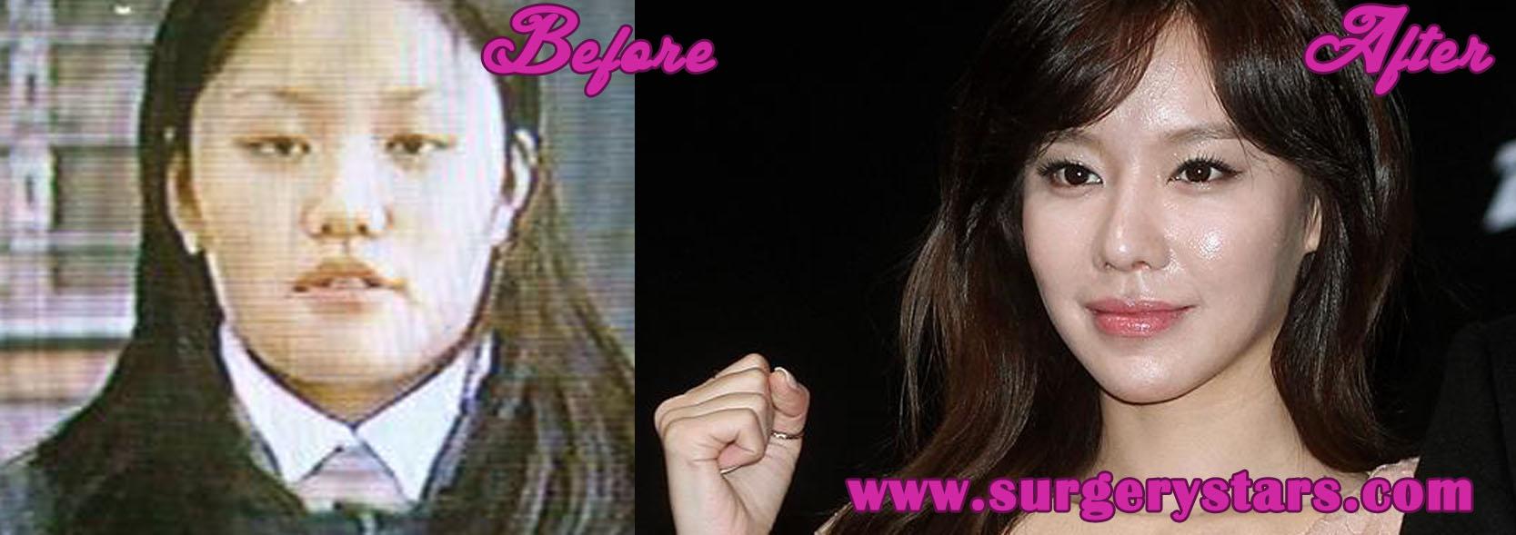 Kim ah Joong Plastic Kim ah Joong Plastic Surgery