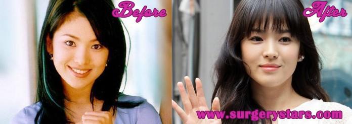song hye kyo plastic surgery