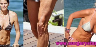 10 Celebrities with Cellulite