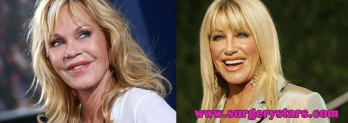 10 celebrities with plastic surgery