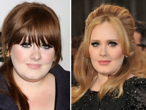 Adele before and after plastic surgery