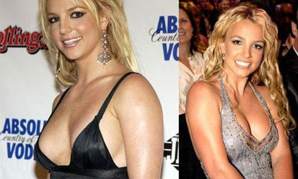 Britney Spears before and after Breast Augmentation