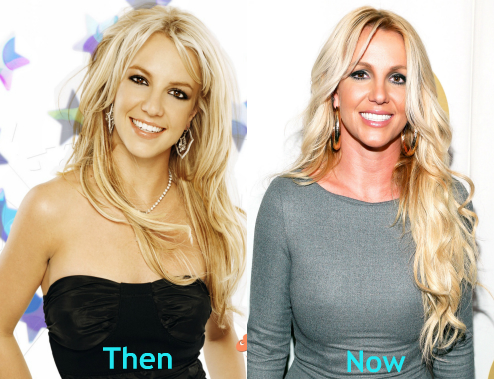 Britney Spears breast implants before and after