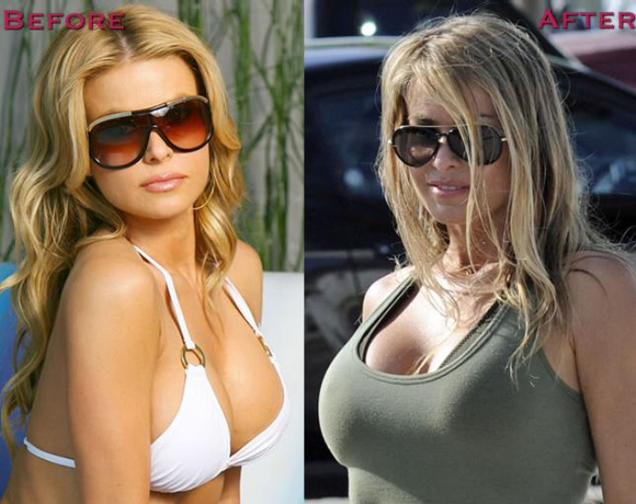 Carmen Electra before and after Breast Augmentation