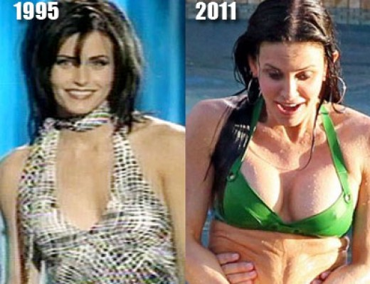 Courtney Cox before and after Breast Augmentation