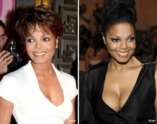 Janet Jackson breast implants before and after