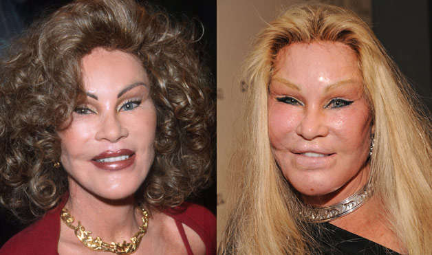 Jocelyn Wildenstein before and after plastic surgery