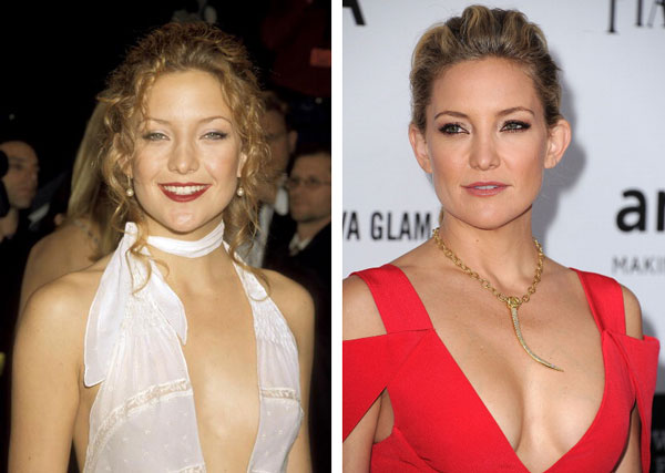 Kate Hudson breast implants before and after