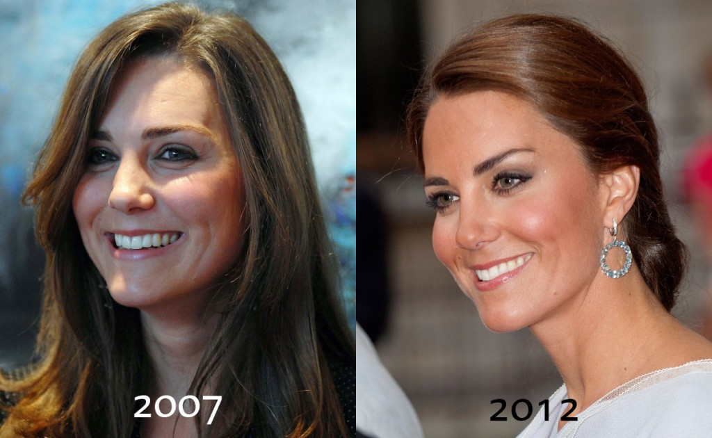 Kate Middleton before and after plastic surgery