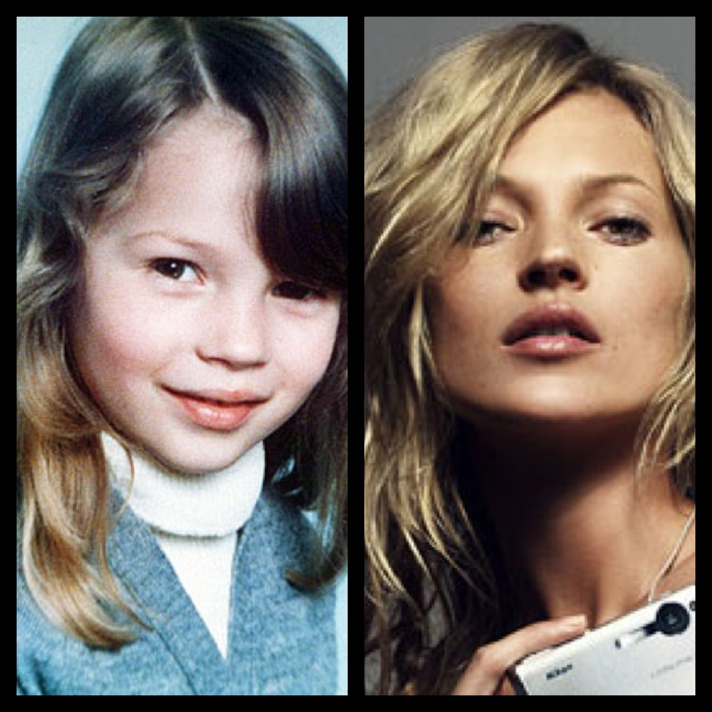 Kate moss nose job before and after