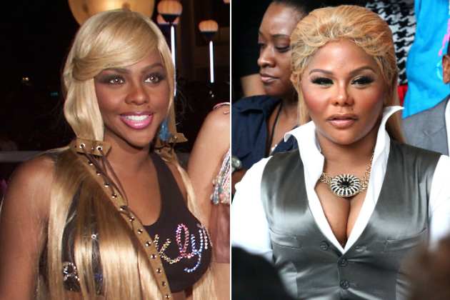 Lil Kim before and after Breast Augmentation