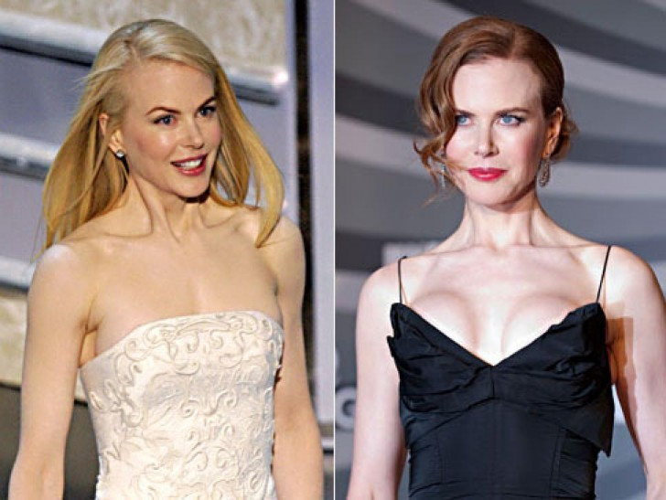 Nicole Kidman before and after Breast Augmentation