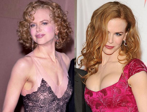 Nicole Kidman breast implants before and after