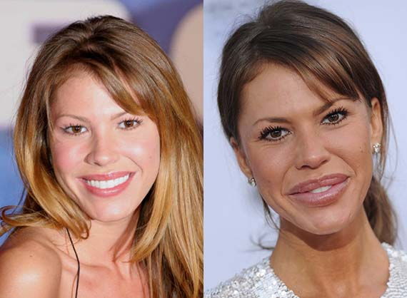 Nikki Cox before and after plastic surgery