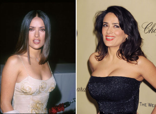 Salma Hayek before and after Breast Augmentation