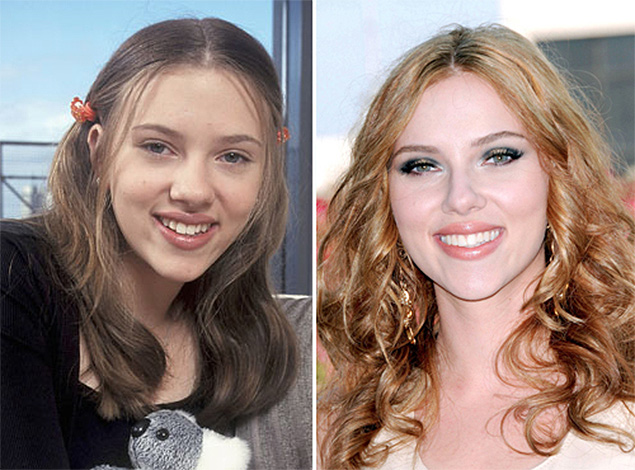 Scarlett Johansson before and after plastic surgery