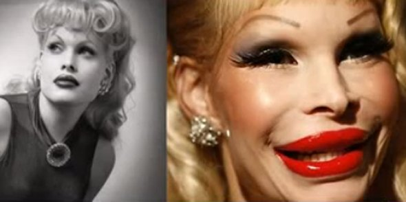 amanda lepore before and after
