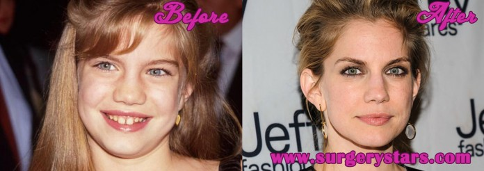 anna chlumsky nose job