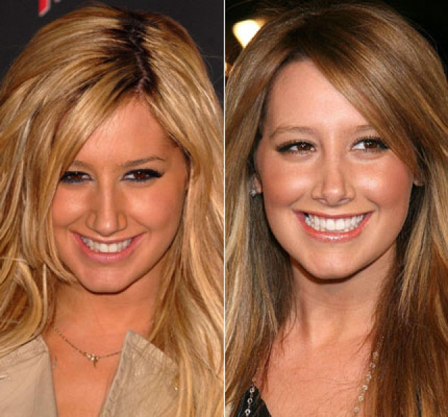 ashley tisdale nose job before and after