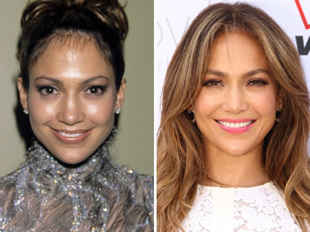 jennifer lopez before and after plastic surgery