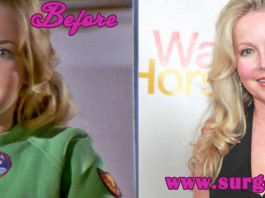 kym karath before and after