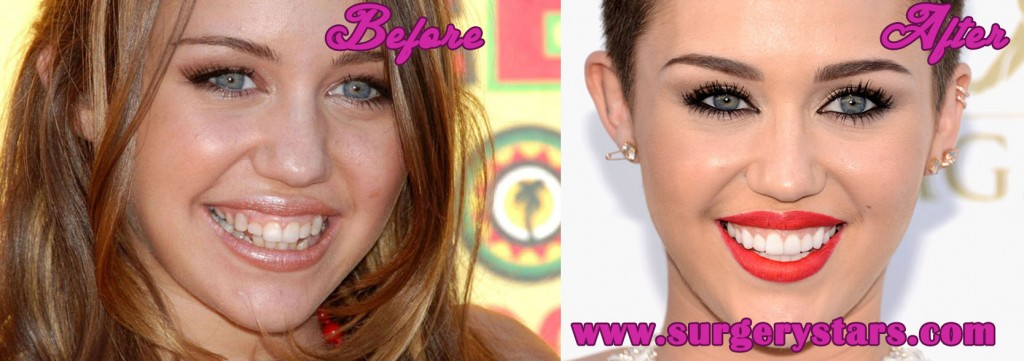 miley cyrus teeth before and after